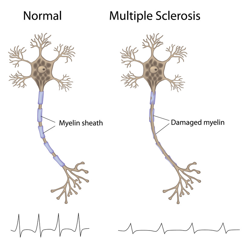 How Stem Cell Treatment Can Help Multiple Sclerosis Sufferers