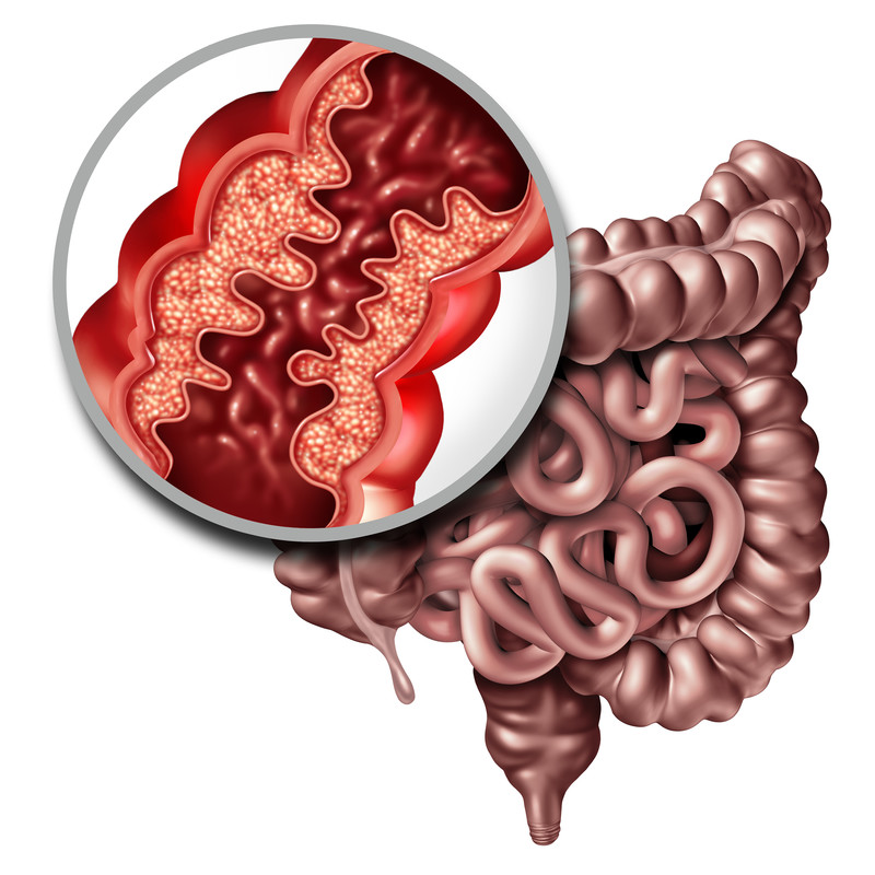 Crohn's disease or Crohn illness of a human intestine with inflammation symptoms causing obstruction