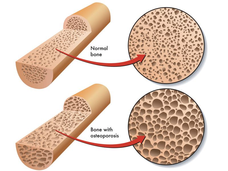 Effects of the Osteoporosis