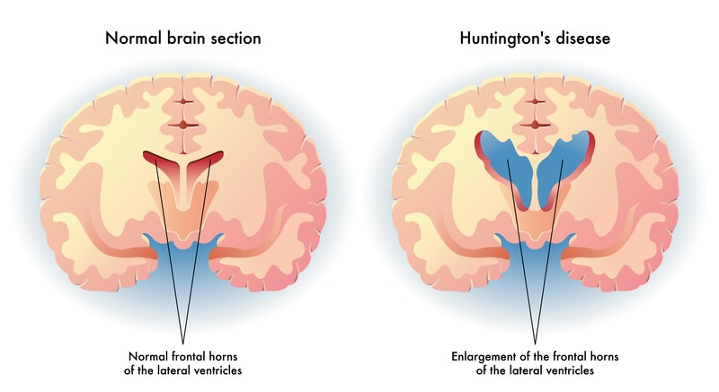 Medical illustration of the symptoms of Huntington's disease in the brain