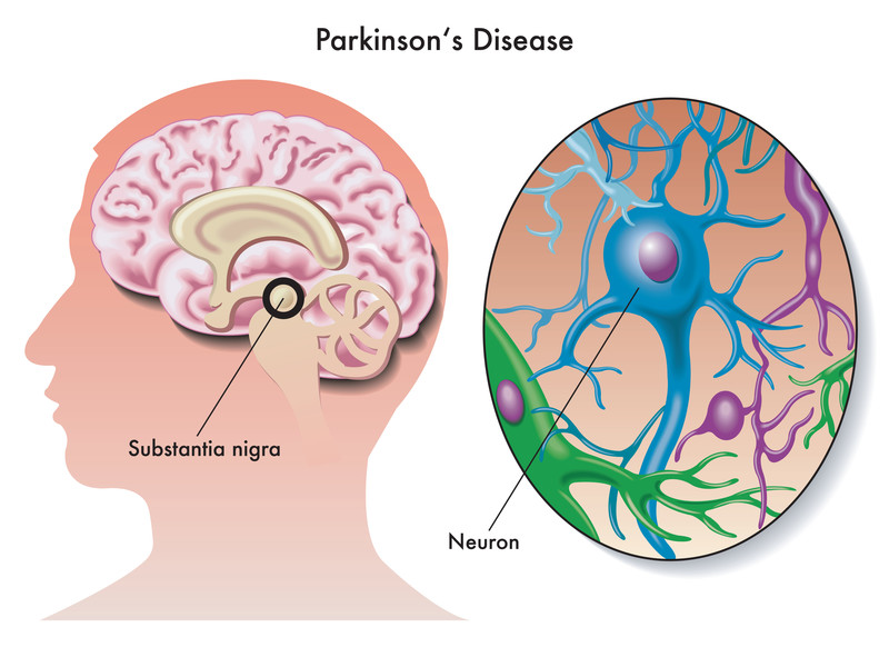 Stem Cells and Parkinson's Disease: Finding a Cure