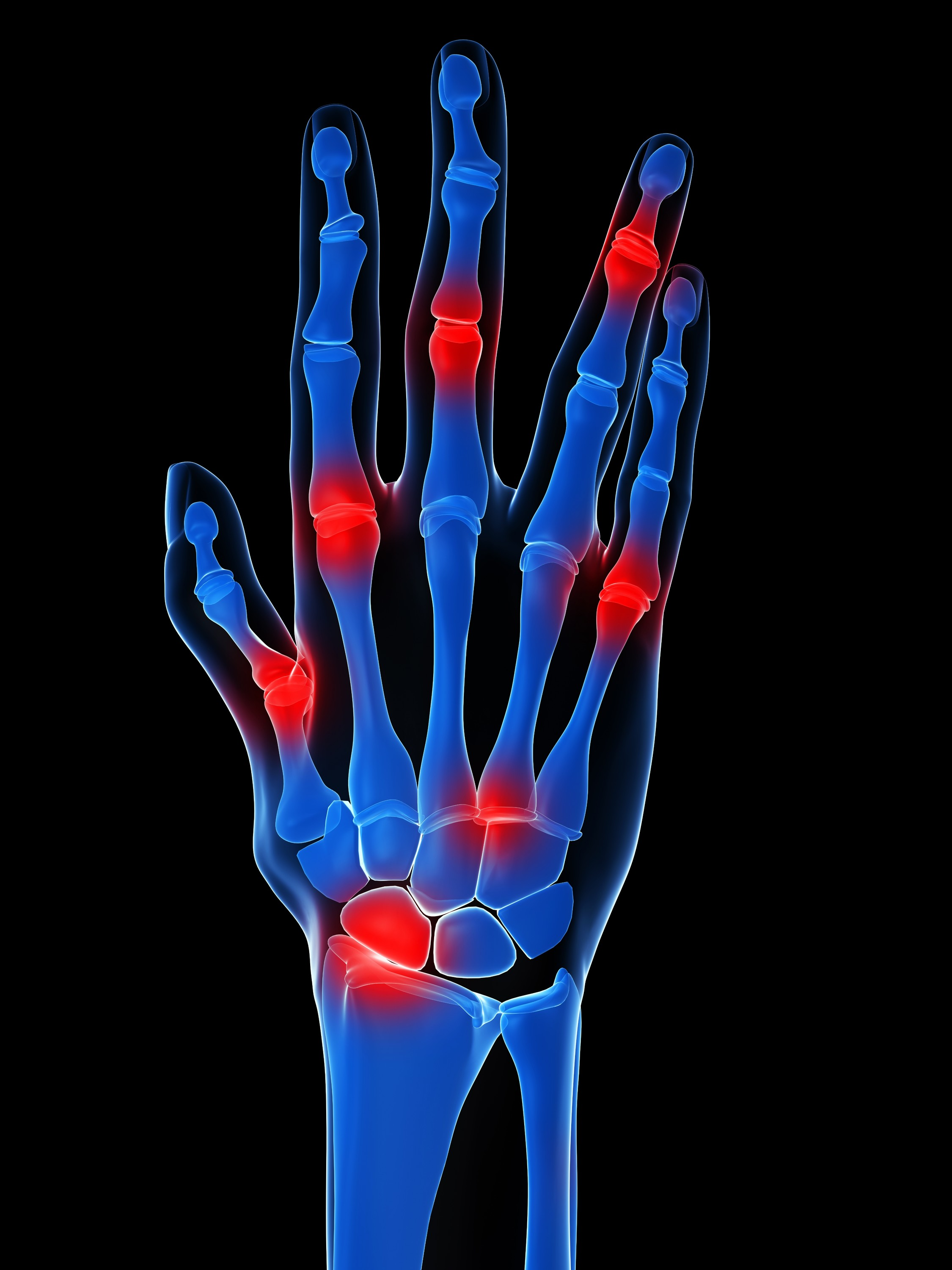 The Potential For Stem Cell Therapy To Treat Rheumatoid Arthritis Indiana Polyclinic