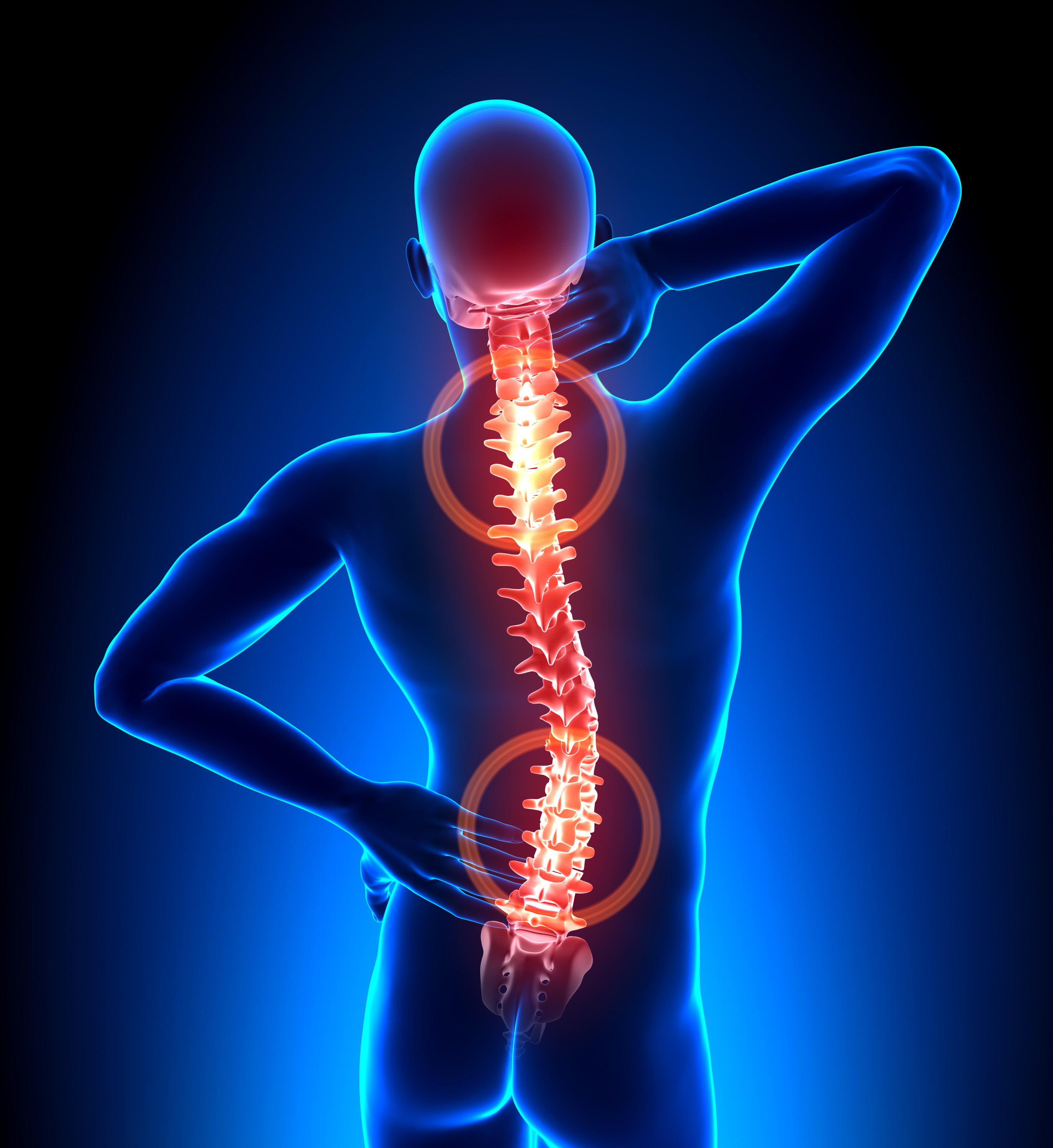 Spinal Stenosis and Stem Cell Therapy. Emerging Treatments for Spine Health